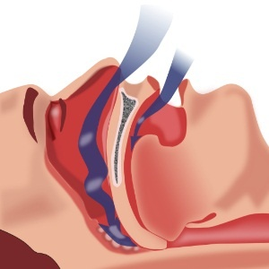 Sleep Apnea Natural Solutions