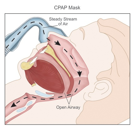 Sleeping CPAP Breath Cycle