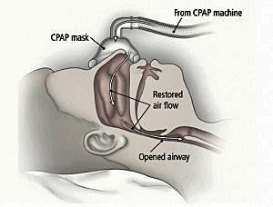 CPAP-machine-respshop